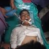 Sopore boy found unconscious on road, succumbs at SKIMS
